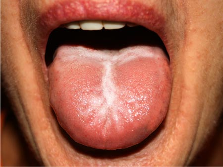 yeast infection tongue thrush